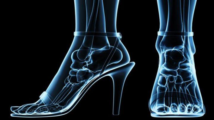 Evita accidentes laborales. Hablemos del calzado ejecutivo
